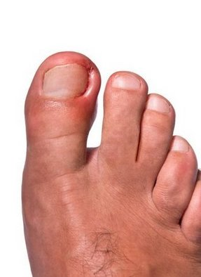 Huntington Beach Podiatrist | Huntington Beach Ingrown Toenails | CA | Eric T. Travis, DPM |