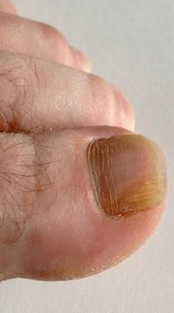 Huntington Beach Podiatrist | Huntington Beach Onychomycosis | CA | Eric T. Travis, DPM |